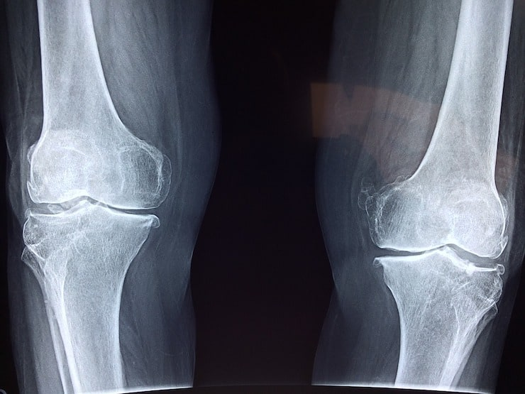 black and white X-ray of knees